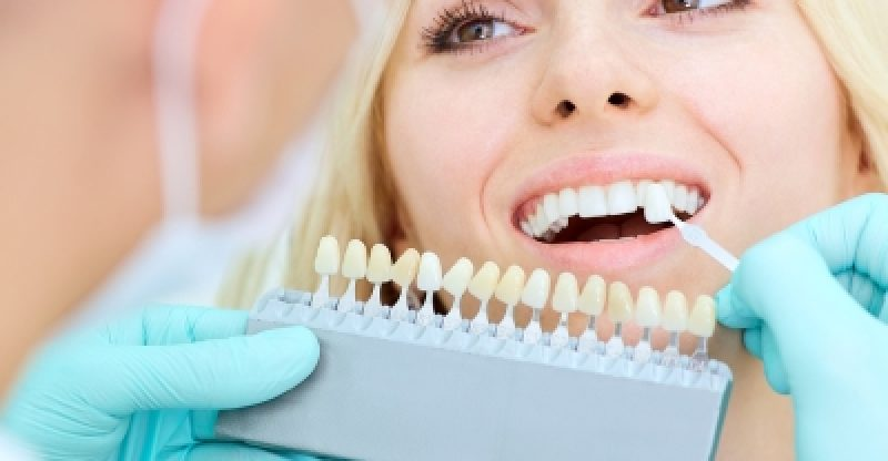 Enjoy The Amazing Benefits Of Dental Crowns